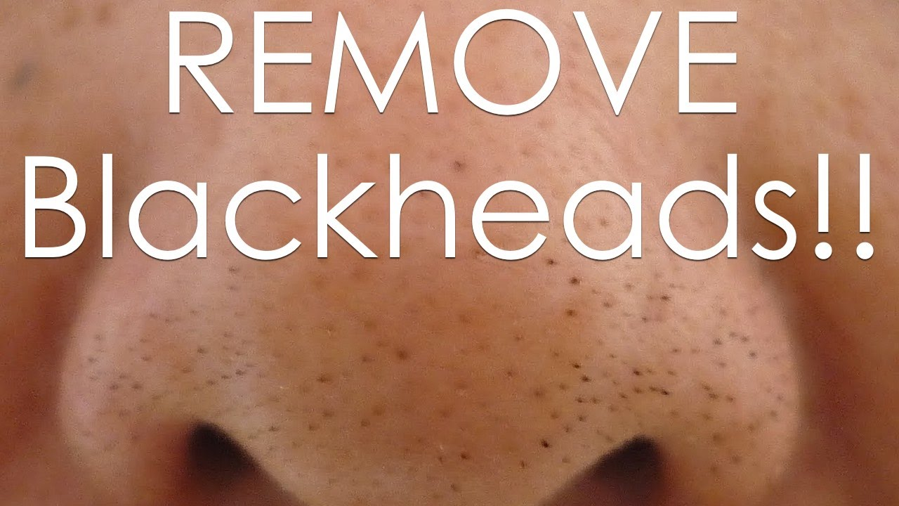 How to get rid of black heads (Home made remedies) (1)