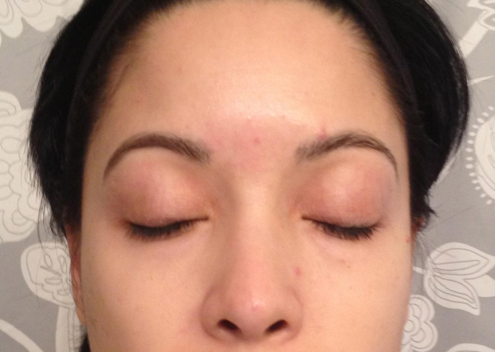 redness of eyebrows